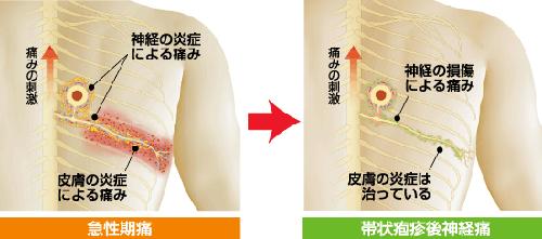 帯状疱疹は顔や体の左右いずれか片方に強い痛みがあるのが特徴です